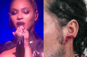 """Fani tną się """"dla Beyonce""""! Ranią sobie uszy... (FOTO)"""
