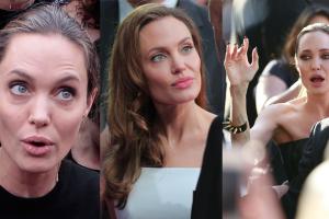 """Jolie cierpi na porażenie nerwu twarzowego. """"Ma niedowład twarzy i nie może do końca zamknąć oczu!"""""""