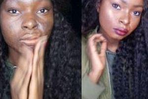 Makijaż pozwala jej normalnie żyć (ZDJĘCIA)