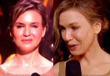 Co się stało z twarzą Renee Zellweger?!