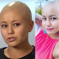 """Trenerka fitness cierpiąca na chorobę autoagresywną: """"Utrata włosów? To nie koniec świata. Ludzie tracą gorsze rzeczy"""""""