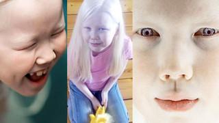 """8-letnia """"Królewna Śnieżka"""" albinoska została uznana za piękność! (ZDJĘCIA)"""