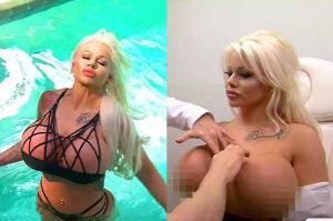 """25-letnia modelka żałuje zrobienia gigantycznych piersi... """"NIE MOGĘ WRÓCIĆ DO MAŁEGO ROZMIARU"""""""