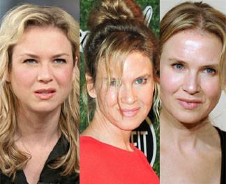 Tak zmieniała się twarz Renee Zellweger...