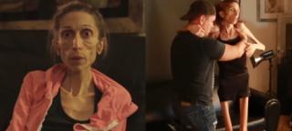 """Anorektyczka prosi o pomoc: """"WAŻĘ 20 KILO i żaden szpital nie chce mnie przyjąć!"""""""