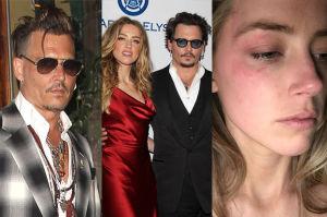 Johnny Depp usunął tatuaż, który zrobił dla Amber!