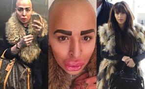 Wydał PÓŁ MILIONA, żeby wyglądać jak... Kim Kardashian!
