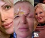 54-latka prawie straciła wzrok po zabiegu medyny estetycznej:
