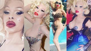 Amanda Lepore: najsłynniejsza transseksualna celebrytka (ZDJĘCIA)