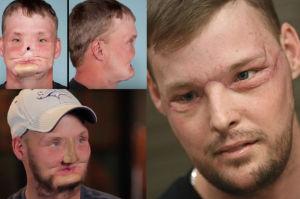 """31-letni samobójca po przeszczepie twarzy: """"To znacznie więcej niż oczekiwałem"""""""