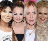 15 lat botoksu: brak zmarszczek, młodość i sparaliżowane twarze (DUŻO ZDJĘĆ)