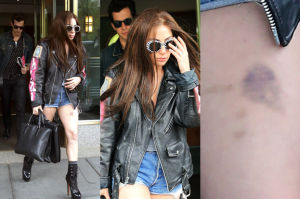 Lady Gaga z ciemnymi włosami i... wielkim siniakiem (ZDJĘCIA)