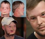 31-letni samobójca po przeszczepie twarzy:
